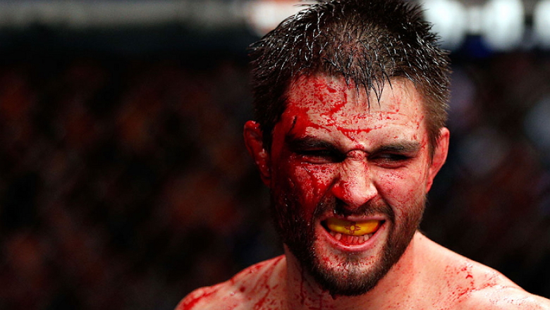 MONTREAL, QC - NOVEMBER 17:  A cut and bloodied Carlos Condit reacts after a round against Georges St-Pierre in their welterweight title bout during UFC 154 on November 17, 2012  at the Bell Centre in Montreal, Canada.  (Photo by Josh Hedges/Zuffa LLC/Zuf