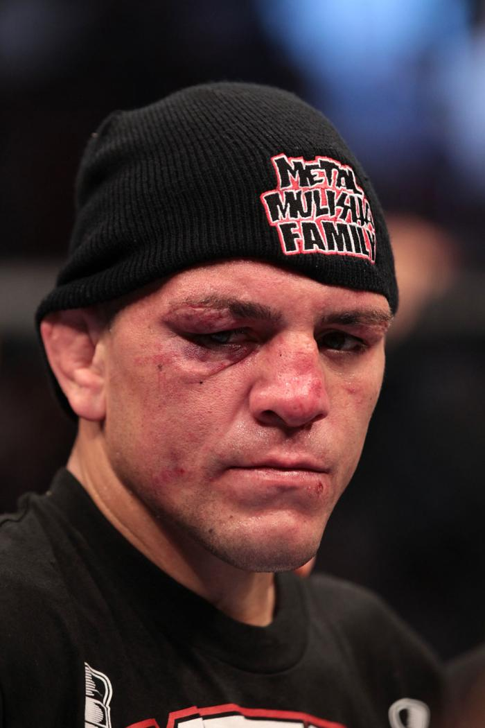 Nick Diaz after the fight