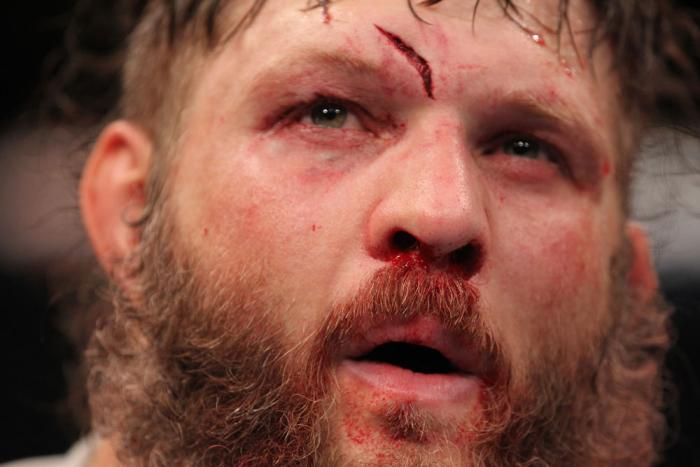 LAS VEGAS, NV - FEBRUARY 04:  Roy Nelson displays his cut from his fight with Fabricio Werdum during the UFC 143 event at Mandalay Bay Events Center on February 4, 2012 in Las Vegas, Nevada.  (Photo by Nick Laham/Zuffa LLC/Zuffa LLC via Getty Images) ***