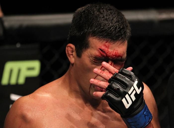 TORONTO, ON - DECEMBER 10:  Lyoto Machida wipes blood from his face during his bout agaisnt Jon Jones during the UFC 140 event at Air Canada Centre on December 10, 2011 in Toronto, Ontario, Canada.  (Photo by Nick Laham/Zuffa LLC/Zuffa LLC via Getty Image