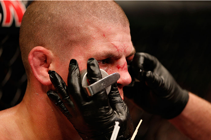 BOSTON, MA - AUGUST 17:  Joe Lauzon is treated by a cutman after his decision loss to Michael Johnson in their UFC lightweight bout at TD Garden on August 17, 2013 in Boston, Massachusetts. (Photo by Josh Hedges/Zuffa LLC/Zuffa LLC via Getty Images)
