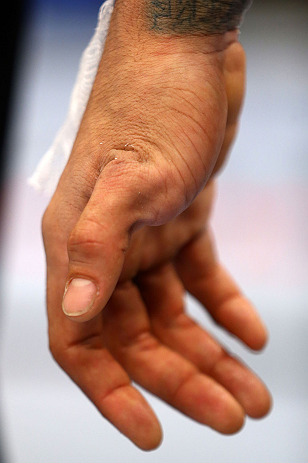 NEWARK, NJ - APRIL 27:  The injured hand of Yancy Medeiros is seen after his lightweight bout against Rustam Khabilov of Russia during the UFC 159 event at the Prudential Center on April 27, 2013 in Newark, New Jersey.  (Photo by Al Bello/Zuffa LLC/Zuffa