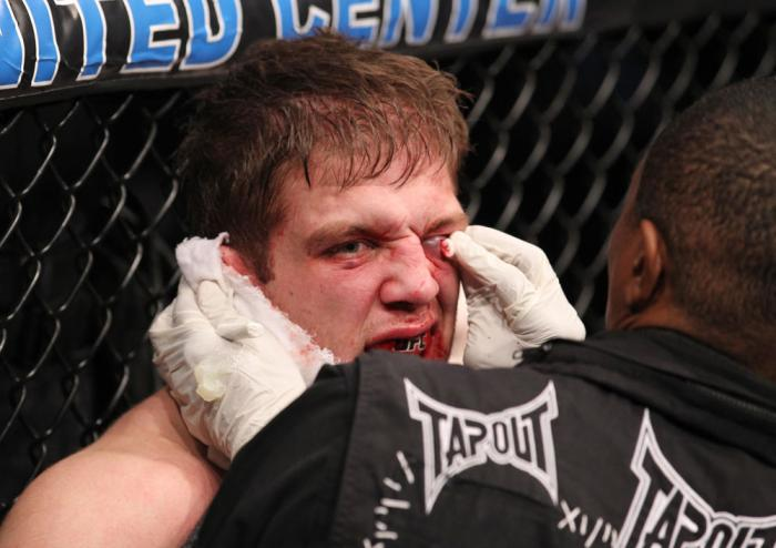 CHICAGO, IL - JANUARY 28:  Nik Lentz is treated for a cut during his bout against Evan Dunham during the UFC on FOX event at United Center on January 28, 2012 in Chicago, Illinois.  (Photo by Nick Laham/Zuffa LLC/Zuffa LLC via Getty Images) *** Local Capt
